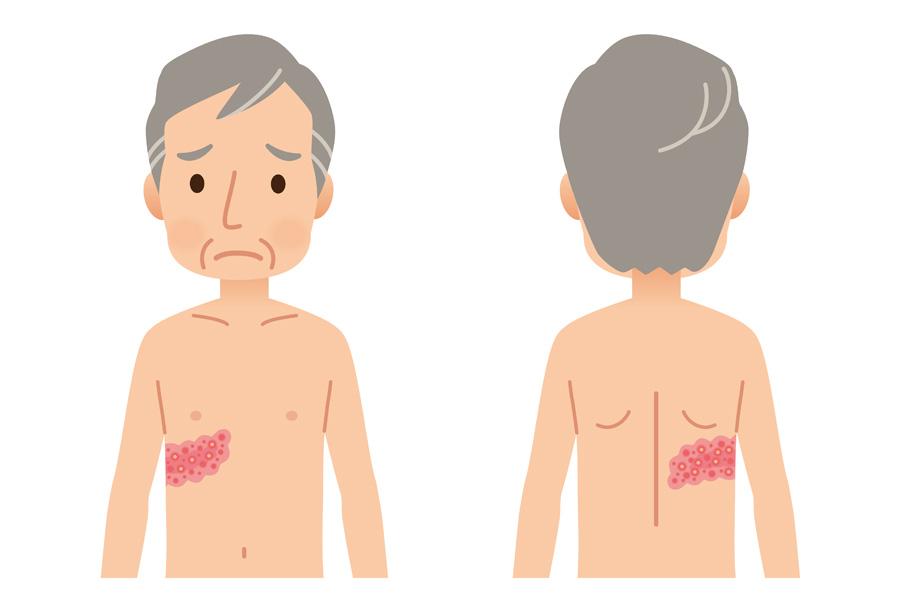 帯状疱疹による痛み